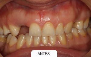 puente dental de 4 piezas
